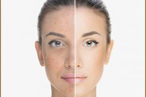 Dermaskin: tutto ciò che devi sapere sulla crema miracolosa per le macchie sul viso